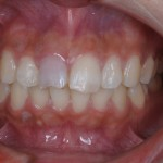 外傷により前歯の変色をウォーキングブリーチで治療した症例